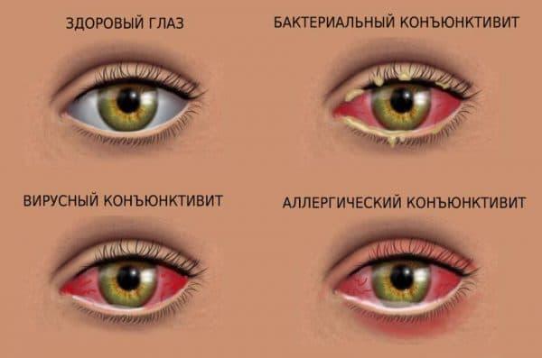 gnoyatsya-glaza-u-rebenka-lechenie-narodnimi-sredstvami