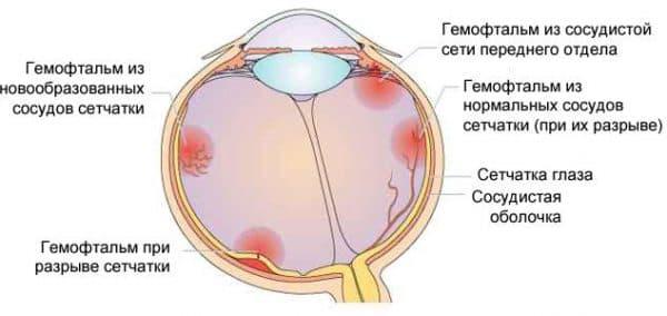 Виды гемофтальма
