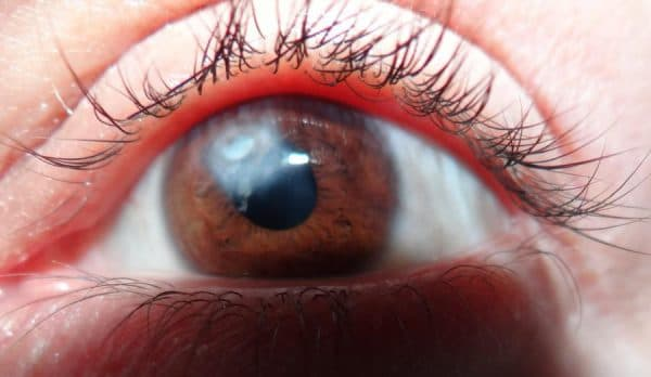Глаз при лейкоме (бельма)