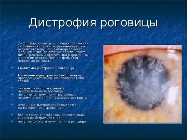 distrofiya-rogovicy
