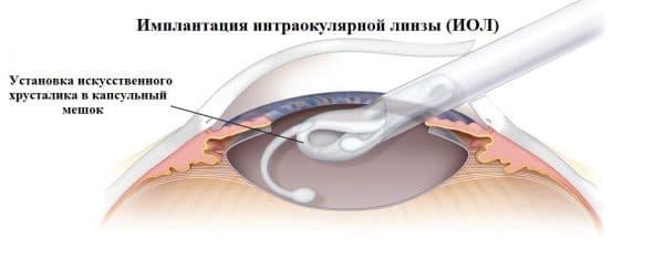 implantaciya-xrustalika