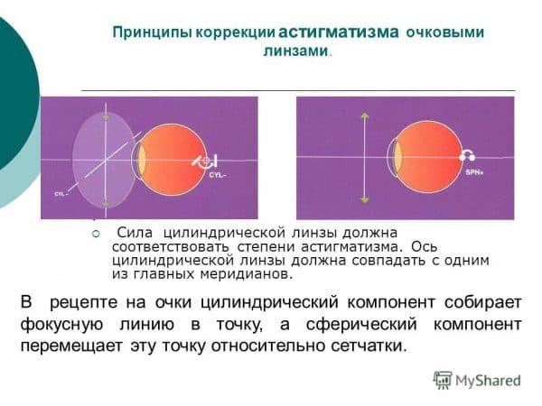 principy-lecheniya-astigmatizma-ochkami