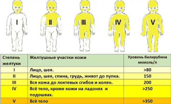 stepeni-patologii-pecheni-u-novorozhdennyx