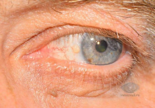 Желтое пятно на белке глаза что это