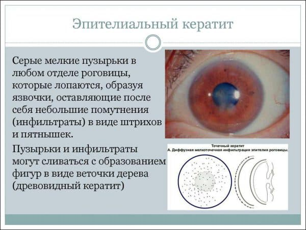 chto-takoe-epitelialnyj-keratit