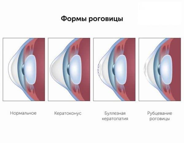 vidy-keratopatii