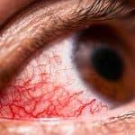 Конъюнктивит: причины, симптомы и лечение