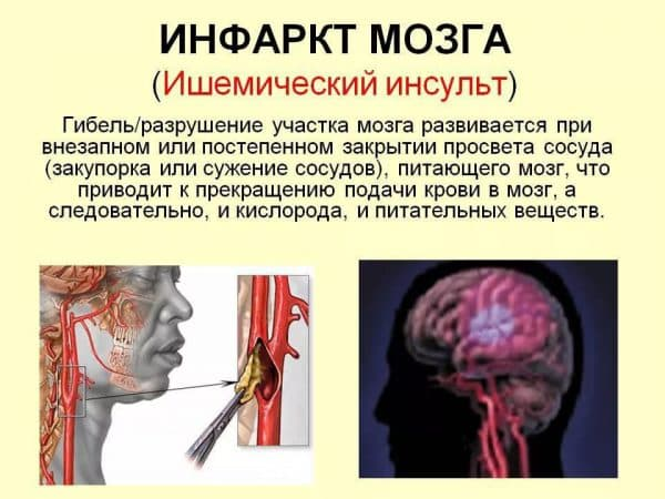 ишемического инсульта