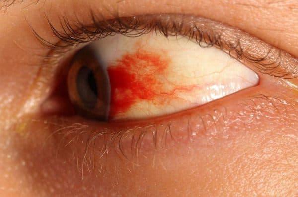 кровоизлияние в глаз причины и лечение