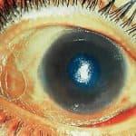 куриная слепота симптомы у человека