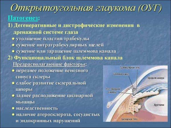 otkrytougolnaya-glaukoma