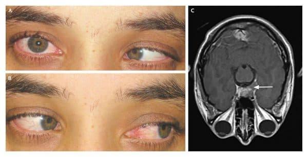 Диплопия возникает при неправильном положении глазного яблока