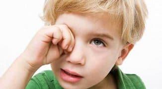 Капли для глаз от аллергии для детей