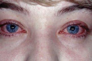 simptomy-allergii-na-glazax