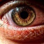 синдром сухого глаза симптомы и лечение