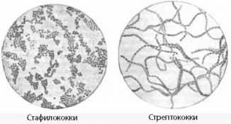 stafilokokki-ili-streptokokki
