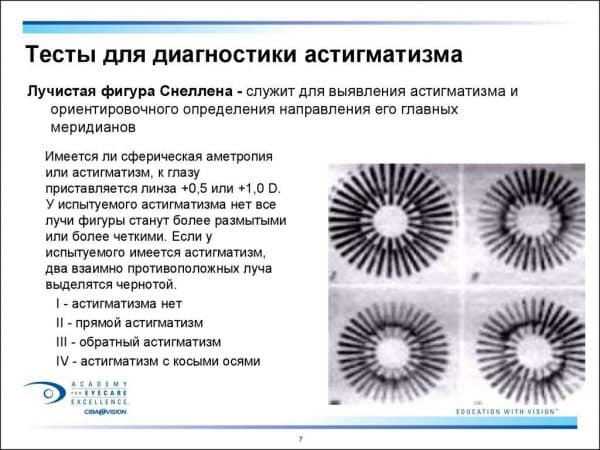 testy-na-opredelenie-astigmatizma