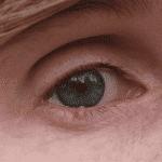 удаление папиллом на веках глаз
