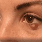 Ячмень: причины, симптоматика, лечение