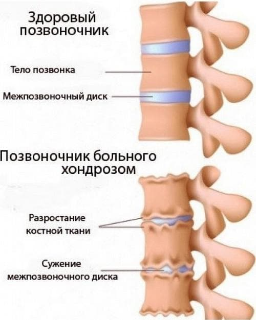 Проявление шейного остеохондроза