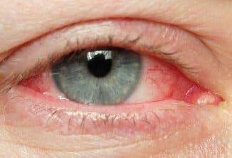 istock_photo_of_eye_with_redness1349117200067