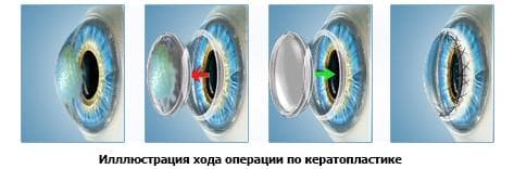 operation_keratoplastik