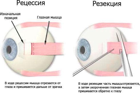operatsii-pri-kosoglazii-1
