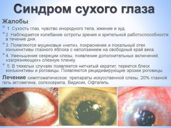 Глазные капли от сухости