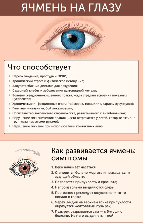 symptomy-yachmenya-570x926
