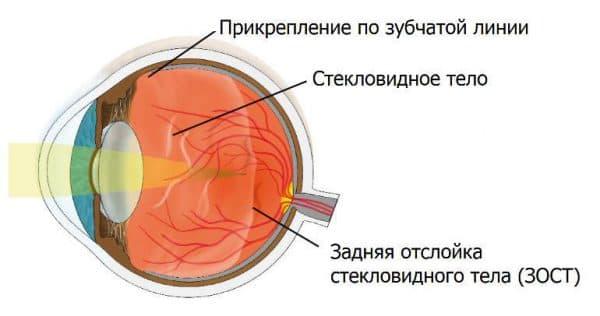Задняя отслойка стекловидного тела лечение