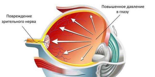 Тонометр маклакова для измерения глазного давления