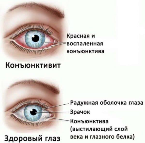 Синдром сухого глаза: симптомы и лечение, причины заболевания, как лечить препаратами, избавиться в домашних условиях
