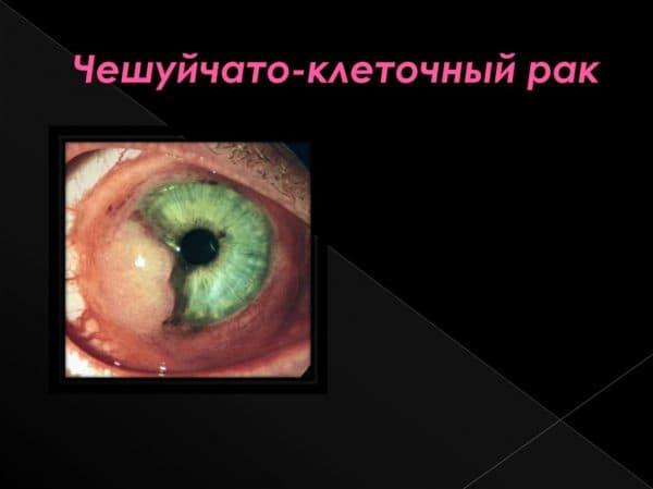 Чешуйчато клеточный рак