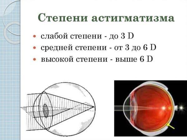 степени астигматизма
