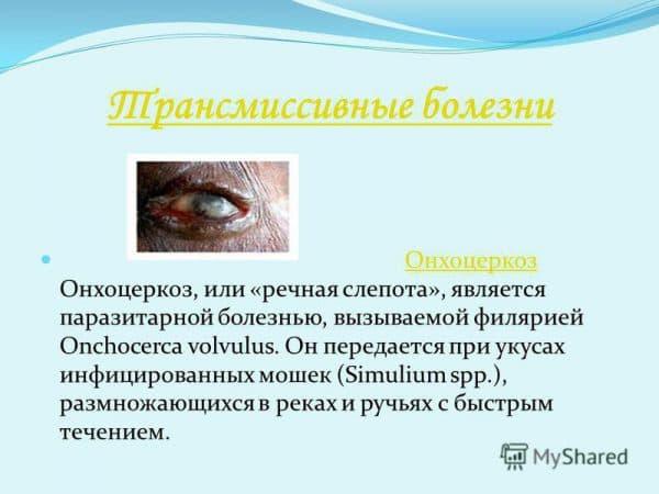 Онхоцеркоз
