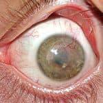 Признаки глаукомы: как вовремя определить?