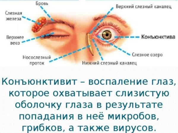 История болезни по офтальмологии бактериальный конъюнктивит